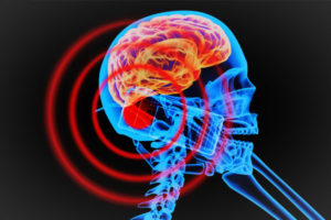 8 Guaranteed tips to minimise radiation from mobile phones